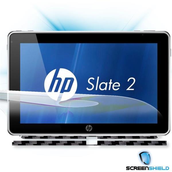 ScreenShield HP Slate 2 - Films on display and carbon skin (black)