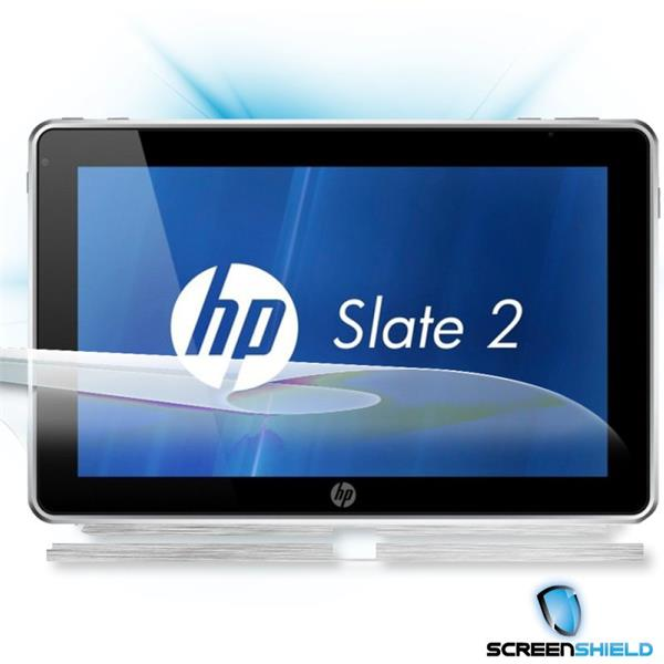 ScreenShield HP Slate 2 - Films on display and carbon skin (silver)