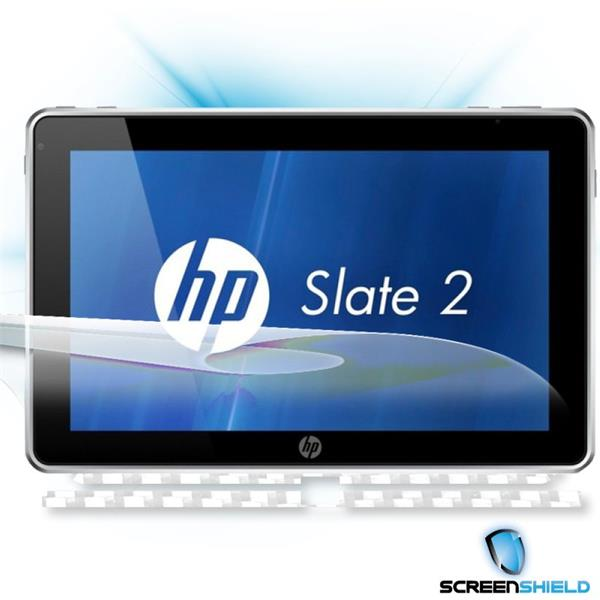 ScreenShield HP Slate 2 - Films on display and carbon skin (white)