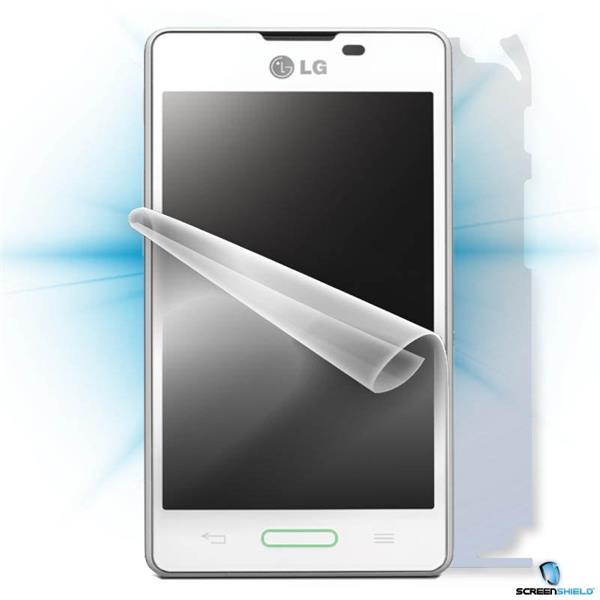 ScreenShield LG E460 Optimus L5 II - Film for display + body protection