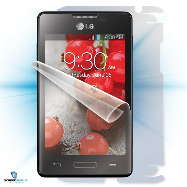 ScreenShield LG Optimus L4 II E440 - Film for display + body protection
