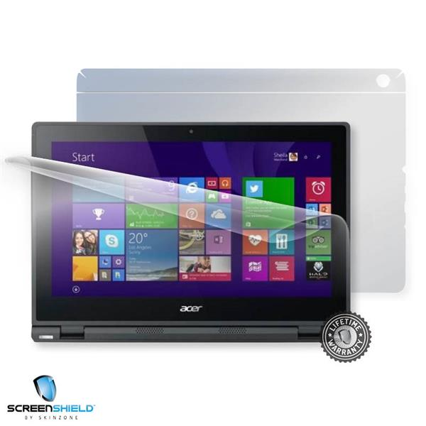 ScreenShield Acer Aspire Switch 10 V - Film for display + body protection