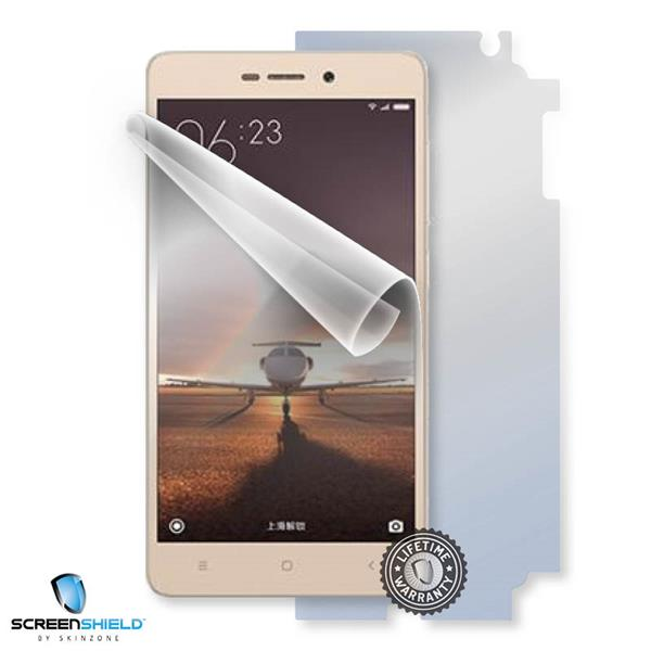 ScreenShield Xiaomi Redmi Redmi 3 - Film for display + body protection