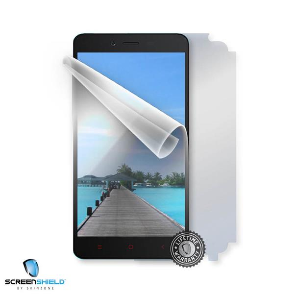 ScreenShield Xiaomi Redmi Note 2 - Film for display + body protection