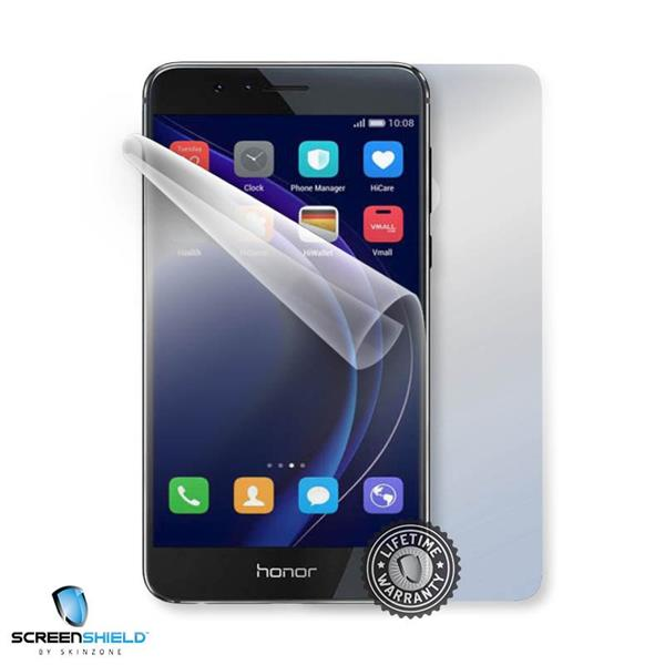 ScreenShield Huawei HONOR 8 - Film for display + body protection