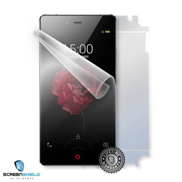 ScreenShield Nubia Z9 Max NX512J - Film for display + body protection