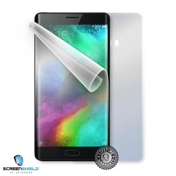 Screenshield XIAOMI MiNote 2 - Film for display + body protection