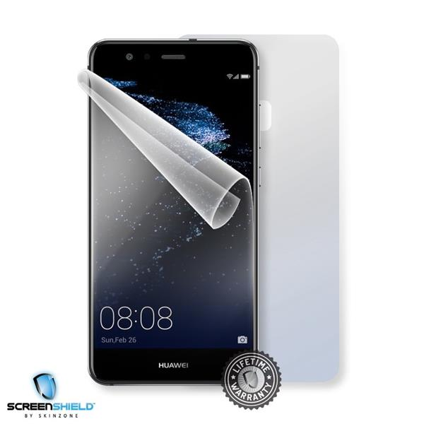 Screenshield HUAWEI P10 Lite - Film for display + body protection