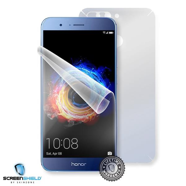Screenshield HUAWEI Honor 8 Pro - Film for display + body protection