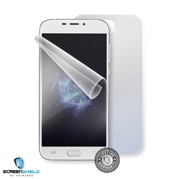 Screenshield DOOGEE X9 Pro - Film for display + body protection