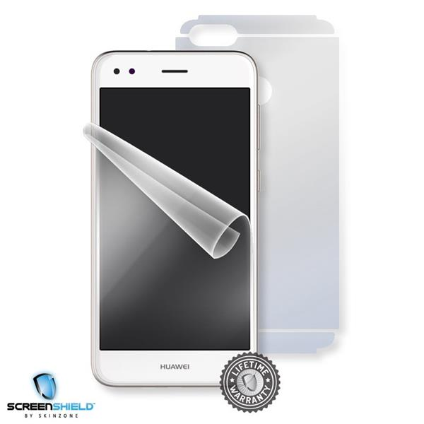 Screenshield HUAWEI P9 Lite Mini - Film for display + body protection