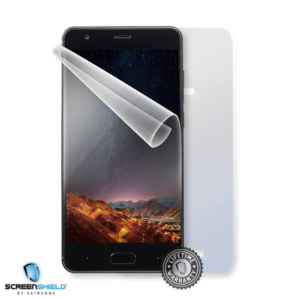 Screenshield DOOGEE X20 - Film for display + body protection