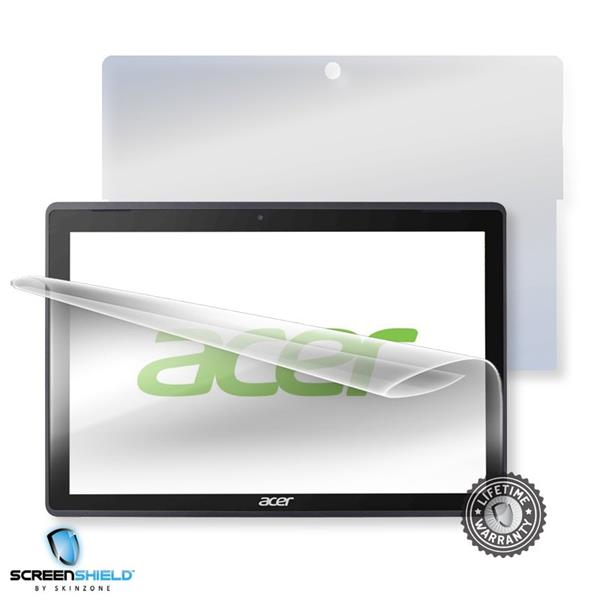 Screenshield ACER Switch 3 SW312-31 - Film for display + body protection