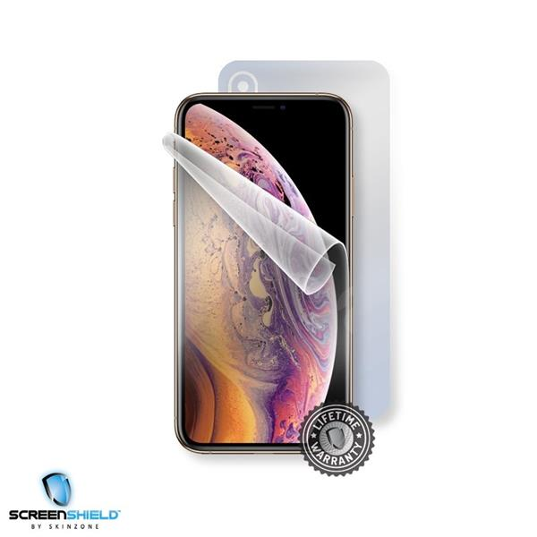 Screenshield APPLE iPhone Xs - Film for display + body protection